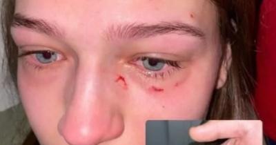 Конфлікт на борту літака: пасажирці з України роздряпали обличчя та відгризли ніготь