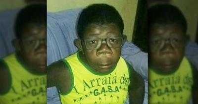 В Анголі кілька років тому виявили хлопчика, який «народився від людини та шимпанзе»: подивитися на підлітка потягнулися натовпи людей